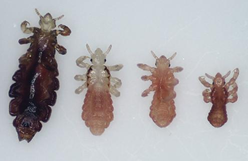 what-do-head-lice-look-like