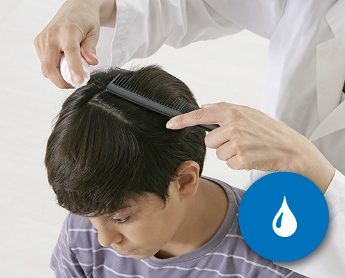 head-lice-removal-san-diego